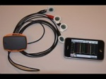 Smartphone Used To Detect Abnormal Heart Rhythms